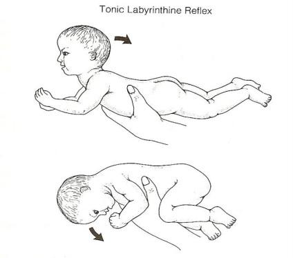 tonic labyrinthine reflex