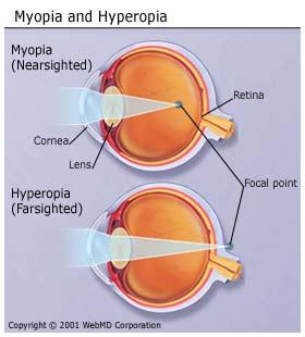 myopia-and-hyperopia